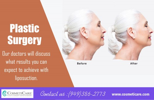 "Breast surgery to enhance the appearance, size and contour at https://www.cosmeticare.com/  services : breast lift breast augmentation breast surgery liposuction liposuction procedure  Like all cosmetic procedures, it's not a ""one size fits all"" option. A breast reduction is not a weight loss measure and should never be treated like one. It's a   procedure for people who want to firm and tone up their abdominal muscles, and have exhausted all their options. A breast reduction is an invasive surgery, and those   who elect to have it should take the time to educate themselves before making a final decision.  Contact us: 949-386-2773  Social:  https://www.facebook.com/cosmeticare https://twitter.com/cosmeticare https://www.instagram.com/cosmeticare_/ https://www.youtube.com/user/CosmetiCare https://www.pinterest.ca/cosmeticareOC/"